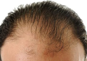 How to grow long hairs naturally?