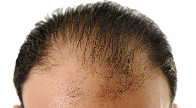 Vitamin for hair growth and thickness