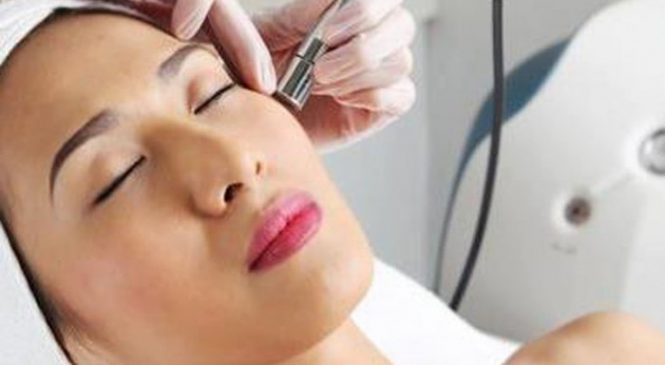 Is Laser Acne Scar Removal Effective for Cystic Acne?