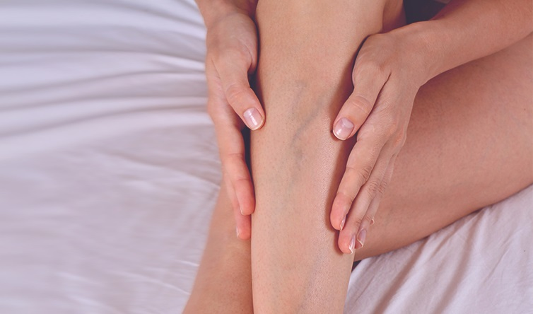 Varicose Vein Myths Debunked